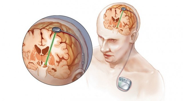 Deep-brain-stimulation-640x353