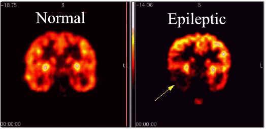 Nursing Diagnosis for Epilepsy