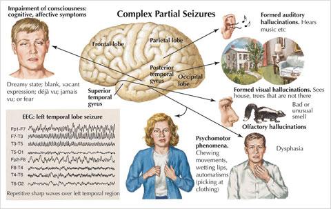 Temporal-Epilepsy